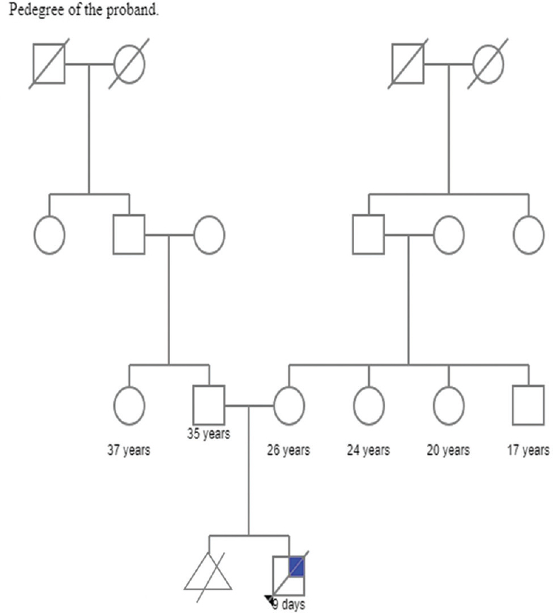 Figure 2: Pedigree analysis: Pedigree analysis of the proband up to the previous three generations. White symbol (square or circle) - a healthy person, white symbol (square or circle stroked through diagonally) - death of that individual, triangle - miscarriage, white symbol (blue colored and stroked diagonally) - proband